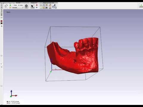 Создание 3Д-моделей по dicom для моделирования индивидуального блока RBB