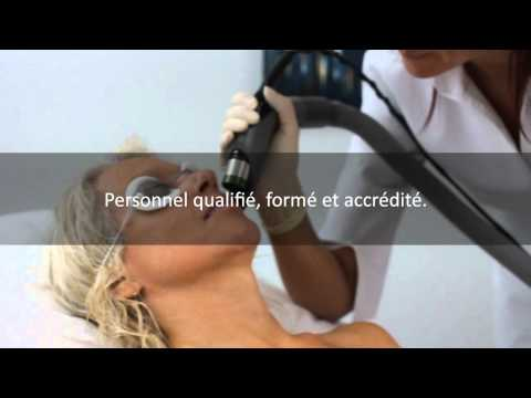 Priciderm e?pilation au laser
