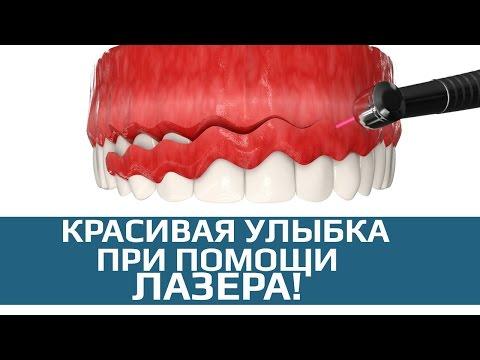 Подрезание десны лазером