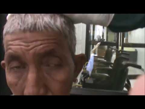 AIOC 2017 - Jaipur - VT67 - Ocular Myasthenia- Ice Test and Neostigmine