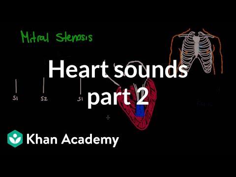Systolic Murmurs Diastolic And Extra Heart Sounds