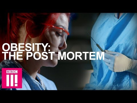 Autopsy On An Obese Woman: Obesity Post-Mortem