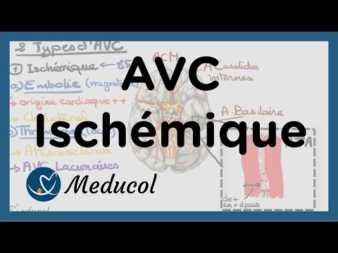 1-avc.ischemique.causes.embolie.cerebrale.avc.thrombose.et.avc.jonctionnel