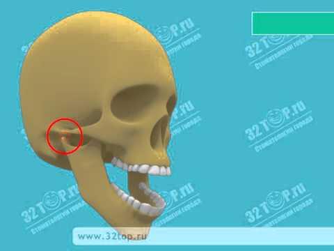 Вывих челюсти