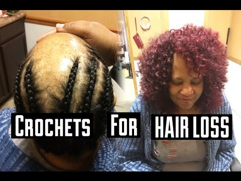 CROCHETS FOR HAIR LOSS CLIENTS