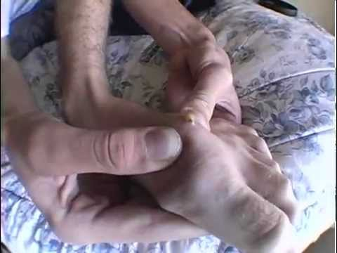 Splinter Foot - A skater gets a splinter in his foot, and it comes to a head months later after removing a cast...