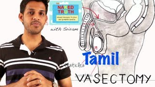 What is a Male Vasectomy? -Tamil