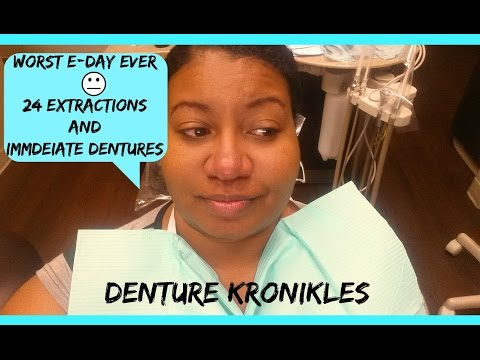 "Denture Kronikles: ""Worst E-Day Ever!""  24 Extractions & Immediate Dentures"