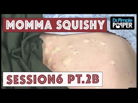 正妹擠痘醫生在患者肚皮驚見「密集痘痘」,接著一出手全攻破的過程讓大家都紓壓慘了!