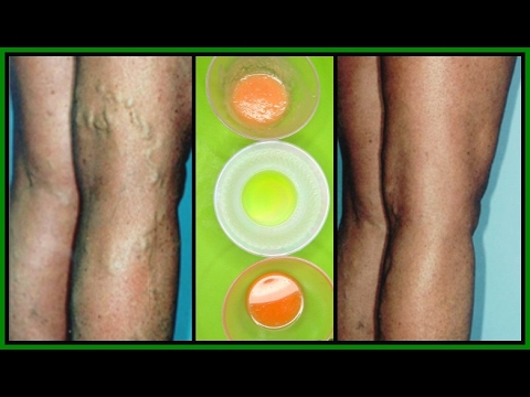 GET RID OF VARICOSE VEINS WITH 3 POWERFUL EFFECTIVE TREATMENTS  100% WORKS   Khichi Beauty
