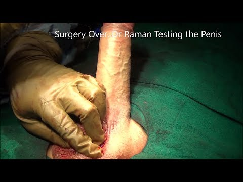 Get That Ting LING Mojo Back -  Penile Implant Surgery in India (English Version)