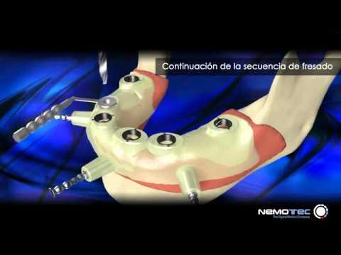 Implantes Dentales con cirugia guiada