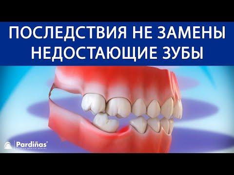 Последствия не замены недостающие зубы ©