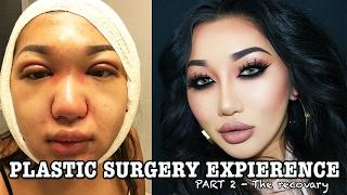 Video MY PLASTIC SURGERY STORY pt 2 | Double eyelid, Rhinoplasty, Chin liposuction MP3, 3GP, MP4, WEBM, AVI, FLV September 2018