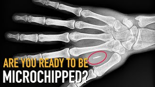 People Implanting Microchips Under Their Skin To Improve Their Lives