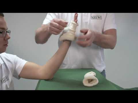Wie wird eine Sehnenentzündung am Daumen optimal behandelt? | KREWI Medical Produkte GmbH