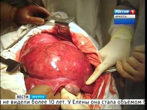 Гигантскую опухоль печени удалили хирурги Иркутской областной больницы,