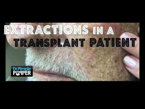 Blackheads on an Older Patient