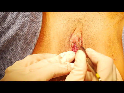 Perfect Vagina Surgery (Labiaplasty) With Beverly Hills Female Plastic Surgeon, Dr. Cat Begovic