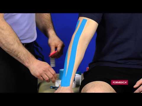 comment traiter epicondylite