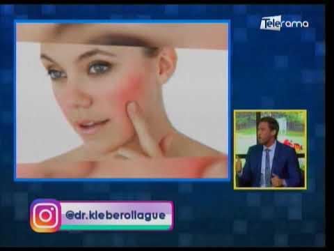 La rosácea: Una enfermedad crónica que afecta la piel