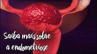 Saiba mais sobre a endometriose