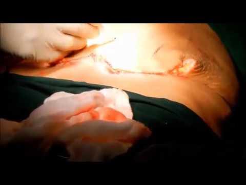 Tummy Tuck Surgery & Abdominoplasty Procedure (видео)