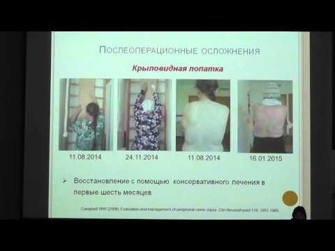 Доклад специалиста по физической реабилитации LISOD Елены Беловой «Комплексная постхирургическая реабилитация пациентов с раком молочной железы». Украина.