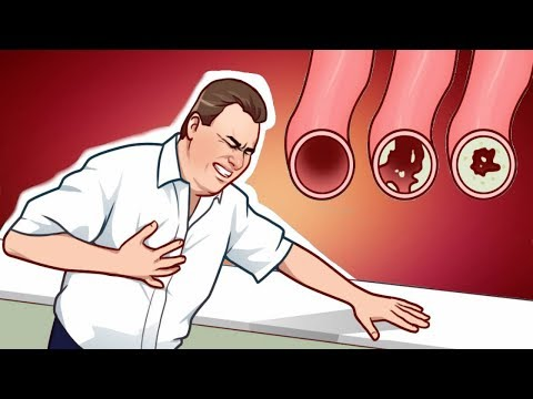 7 Lifestyle Changes That Will Clean Your Arteries Naturally And Protect You From Heart Attack