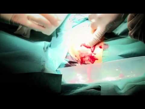 Unusual - Katherine Cross goes under the knife as the surgeons attempt to remove the horrendous abscess on her chest. Check out more Bizarre ER at: http://www.youtube....