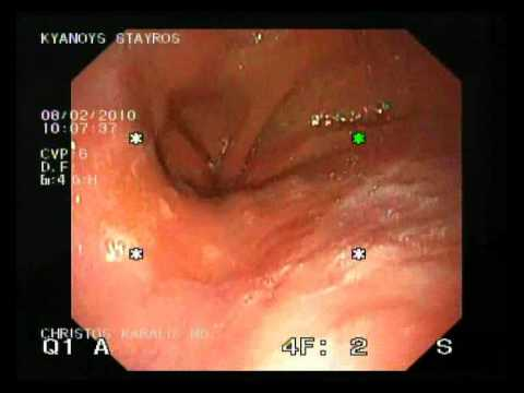 Ulcetarice Esophagitis After Gastric Band