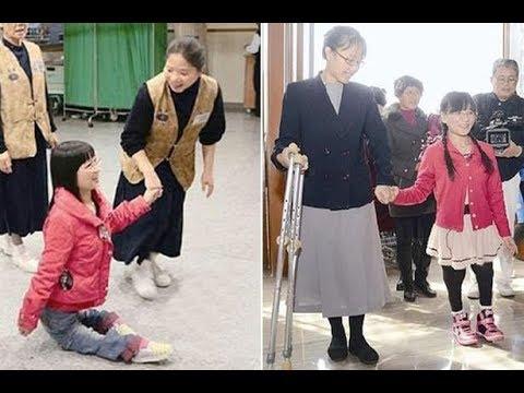 Video ผู้หญิงที่เกิดมากับเท้าที่ผิดปกติ สามารถเดินได้อีกครั้ง download in MP3, 3GP, MP4, WEBM, AVI, FLV January 2017