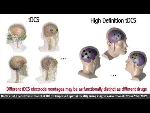 [VIDEO] Marom Bikson plenary talk on tDCS at Society of Biological Psychiatry 2018 meeting – YouTube