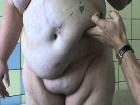 Ведение пациентов с кишечной стомы