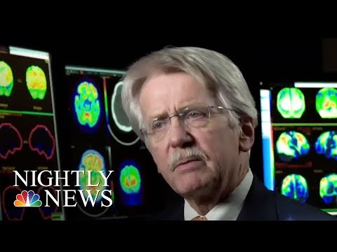Alzheimer's Prevention: Some Common-Sense Practices That May Help Slow Alzheimer | NBC Nightly News