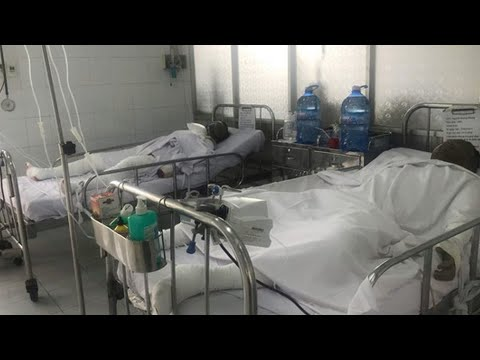 4 người bị bỏng nặng do hậu quả vừa đổ xăng vừa hút thuốc lá
