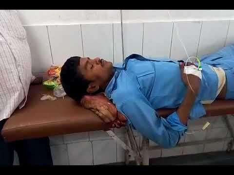 झाँसी मेडिकल कालेज में लापरवाही की पराकाष्ठा: घायल के सिरहाने लगा दिया उसका कटा हुआ पैर