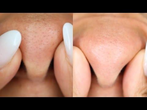 Mitesser Entfernung Tipps Für Klare Poren
