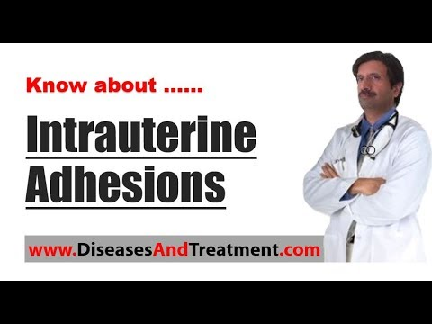 Intrauterine Adhesions (Abdominal Adhesions) : Causes, Symptoms, Diagnosis, Treatment, Prevention