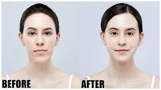 I Got Plastic Surgery in Korea Part 2 || Before / After