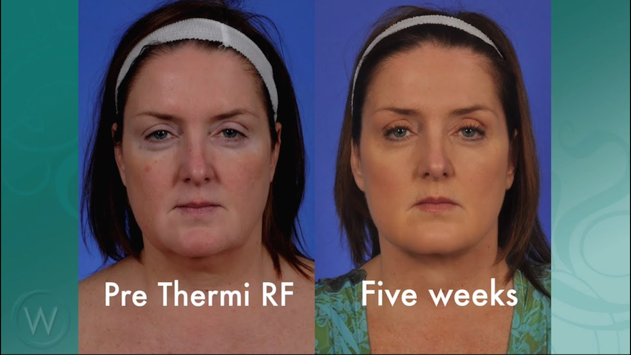 ThermiRF - Thermi Tight Success: Mary's Story