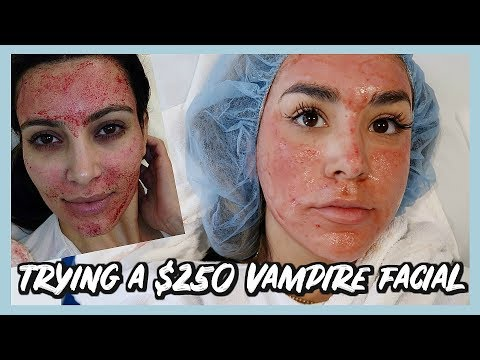 TRYING THE KIM KARDASHIAN VAMPIRE FACIAL? PRP TREATMENT