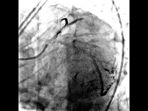 Осложнения после стентирования - тромбоз стента