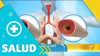 Te explicamos todo lo que debes saber sobre el asma | Un Nuevo Día