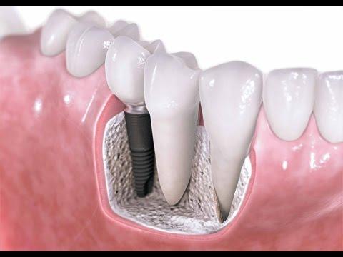 Профилактика и протезирование после удаления зуба