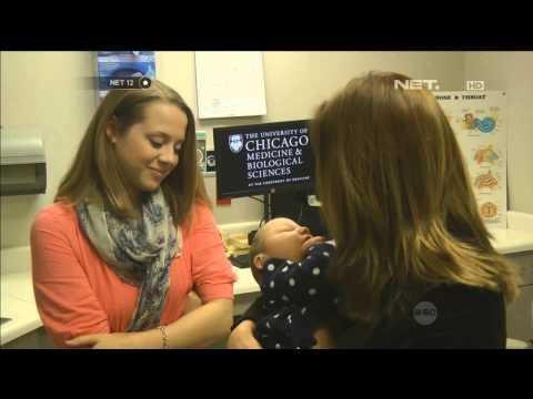 Virus CMV menyerang otak dan pendengaran bayi - NET12