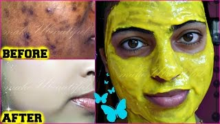 hello everyone....Today's video is about HOW TO GET RID OF DARK SPOTS,BLACK SPOTS,ACNE SCARS & GET BRIGHTER,CLEAR,SPOTLESS SKIN*****************INGREDIENTS :-*****************1.Gram Flour/Besan2.Lemon Juice3.Turmeric Powder-http://amzn.to/2oNY26F                                   http://amzn.to/2oxXd2K4.Aloevera Gel-http://amzn.to/2nu0CNX                           http://amzn.to/2oO5lLs5.Sweet Almond Oil-http://amzn.to/2oNLRqs                                    http://amzn.to/2ntU5Tzplz LIKE the video & SUBSCRIBE to my channelCONTACT:mkb.makeubeautiful@gmail.comFOLLOW ME: TWITTER:https://twitter.com/makeUabeautifulFACEBOOK:https://www.facebook.com/MakeUbeautiful-1671222829841630/XOXOMoumitaWATCH MY OTHER VIDEOS:-TOP 6 AFFORDABLE SUMMER LIPSTICKS FOR INDIAN SKINTONE UNDER Rs 650/-  makeUbeautifulhttps://youtu.be/urIEvS7A7nEHOW TO LIGHTEN DARK UNDERARMS EASILY AT HOME  GET RID OF DARK ARMPITS FAST  makeubeautifulhttps://youtu.be/r6vJMC28bNsGET GLOWING SKIN INSTANTLY  #WINTERSPECIAL Facemask for Healthy Skinhttps://youtu.be/eHy88IX7vbkBEST BODY OIL AT AFFORDABLE PRICE  PATANJALI TEJAS TAILUM REVIEWhttps://youtu.be/6bchAGEcv50GET FAIR SKIN IN JUST 20 MINUTES  VERY EFFECTIVE NATURAL HOME REMEDYhttps://youtu.be/5uNqnGDa3-sMagical Remedy To Get Crystal Clear Spotless Skin Overnight  100% Tried & Testedhttps://youtu.be/SwG4qTRHJ2sHow To Make BRIDAL UBTAN To Get The Bridal Glow https://youtu.be/J7KWrEa7Ul8DIY NATURAL HOMEMADE SCRUB FOR FACE & BODY  GET SOFT,SMOOTH,HEALTHY SKIN INSTANTLY https://youtu.be/ni92H1GAz2cGET RADIANT, BRIGHT, GLOWING SKIN  DIY COFFEE FACEMASK  makeUbeautifulhttps://youtu.be/sBmL9TMF8x0MAGICAL DRINK FOR EXTREME WEIGHT LOSS  NO DIET ,NO EXERCISE   100% EFFECTIVE  RESULTShttps://youtu.be/2Bed58vjdX8How To get CLEAR BRIGHT SKIN   DIY Easy Homemade Facepackhttps://youtu.be/1AWEMR35hxcBEST HAIR OIL FOR HAIR LOSSHAIR GROWTHDANDRUFFDRY HAIRHAIR REGROWTHTHICK HAIRHEALTHY HAIRhttps://youtu.be/-ZBqbKIqIpUGARNIER ULTRA BLENDS INTENSE REPAIR SHAMPOO REVIEW  WITH