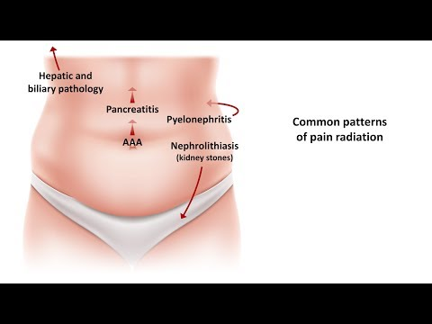 An Approach to Acute Abdominal Pain