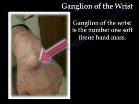 ganglion cyst diagnosis draining and surgery facial cyst removal
