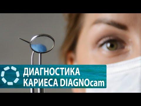 DIAGNOcam KaVo в клинике «Семь Докторов» — Кудряшова А. А.